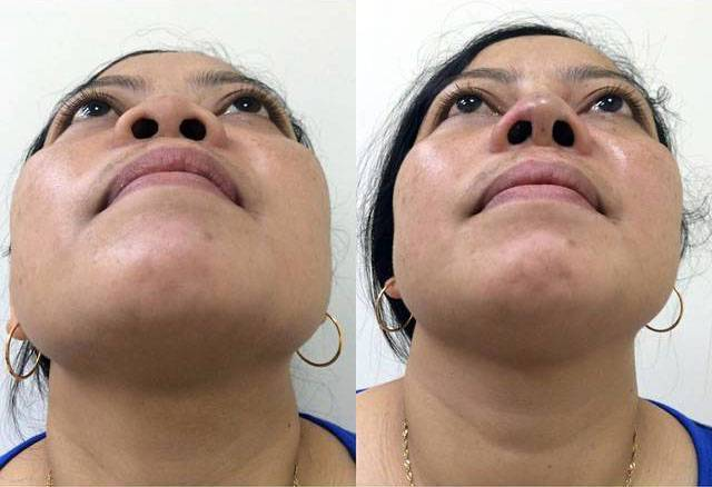 Asian rhinoplasty before and after nose implant