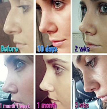 Before and after rhinoplasty photos 3 weeks after