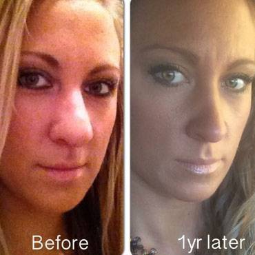 Before and after rhinoplasty pictures 1 year later