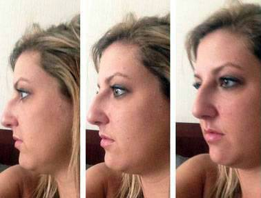 Before and after rhinoplasty pictures of dorsal hump remove