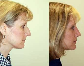 Before and after rhinoplasty pictures of removing dorsal hump