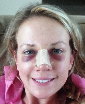 Black circles under eyes after rhinoplasty surgery