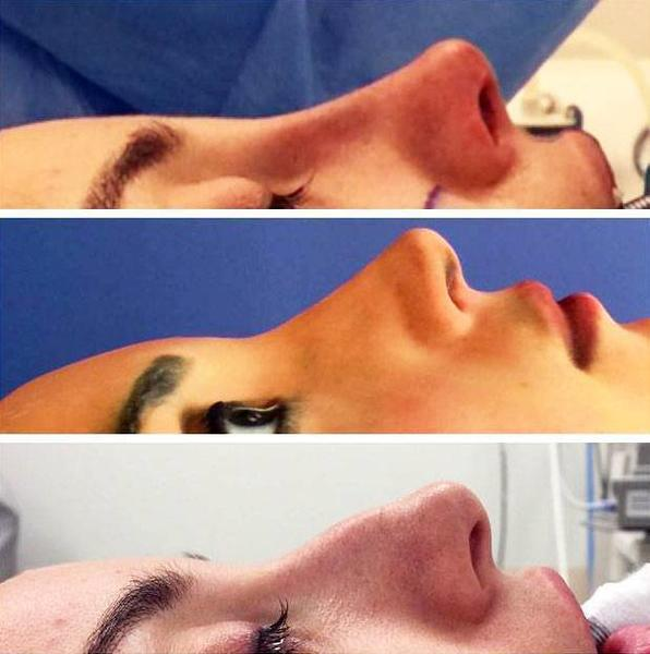 Closed rhinoplasty before after photos of surgery