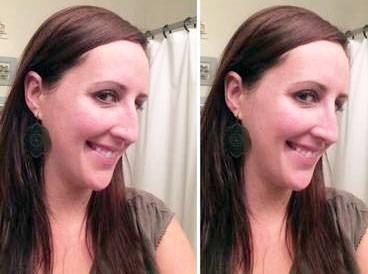 Great rhinoplasty before and after pictures