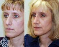 Information about before and after rhinoplasty