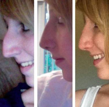 Rhinoplasty before and after hump removal pictures