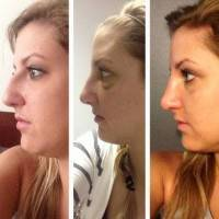 Rhinoplasty before and after nasal hump pictures nose job