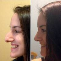 Rhinoplasty big nose to small nose before and after