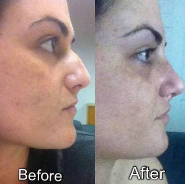 Rhinoplasty bump removal before and after image