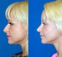 Rhinoplasty dorsal hump removal before and after photo