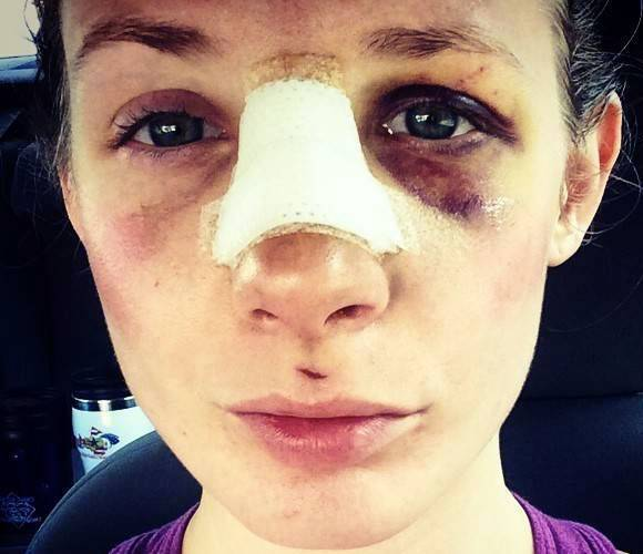 Rhinoplasty nose cast