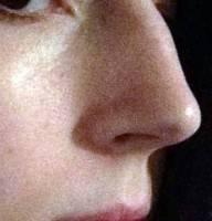 Rhinoplasty nose surgery info