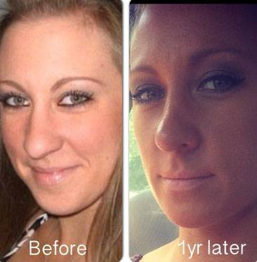 Rhinoplasty pictures after one year