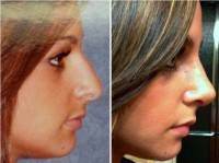 Rhinoplasty pictures before and after female