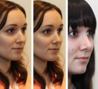 Rhinoplasty pictures of changing face