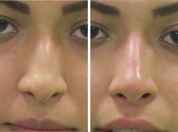 non surgical nose job with fillers