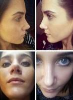 Closed rhinoplasty tip before and after
