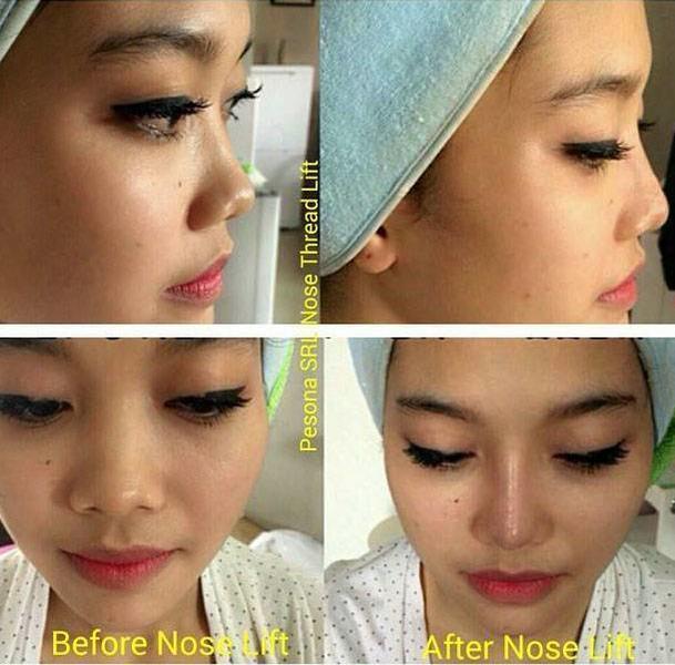 Non Surgical Nose Job Before After Images Of Best Surgeons Rhinoplasty Cost Pics Reviews Q A