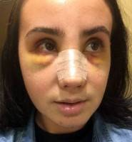 Nose job surgery swelling