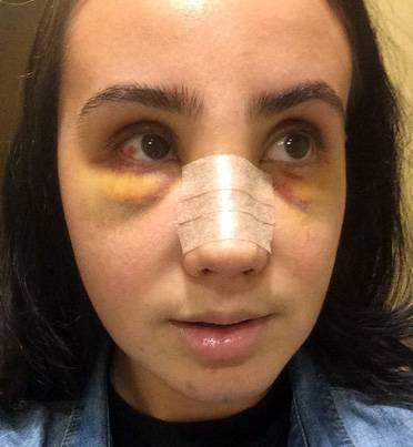 Nose job surgery swelling