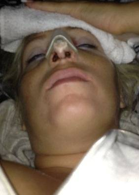 Nose upturned after rhinoplasty nose job