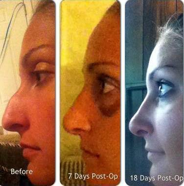 Open Rhinoplasty Recovery Time Rhinoplasty Cost Pics Reviews Q A