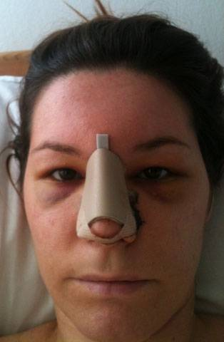 Asymmetrical nose after nose job » Rhinoplasty: Cost, Pics ...