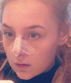 Bumps On Nose After Rhinoplasty » Rhinoplasty: Cost, Pics