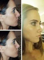 How long is nose job rhinoplasty surgery