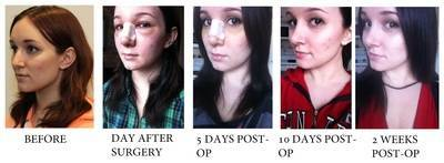 Rhinoplasty Before After Recovery In 1 Month Rhinoplasty Cost Pics Reviews Q A