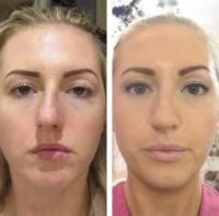 Septoplasty And Rhinoplasty Surgery To Remove Bump