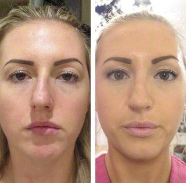 Septoplasty and rhinoplasty before and after pictures