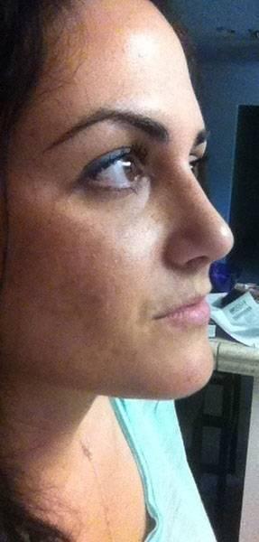 nasal septal perforation repair
