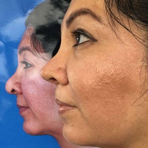 Rhinoplasty Can Cost Between $3,000 And $15,000 Depending On Your Surgeon's Reputation