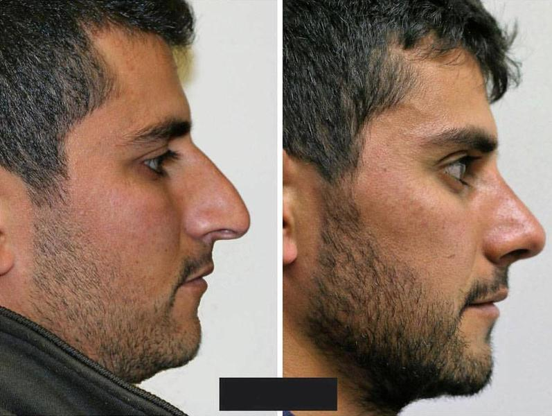 Miami Plastic Surgery Rhinoplasty For Man Before And After