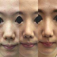 Rhinoplasty For Asian Nose » Rhinoplasty: Cost, Pics, Reviews, Q&A