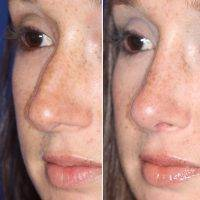 How Much Does Nose Surgery Cost In California? » Rhinoplasty