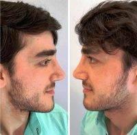 Nose Plastic Surgery In Florida » Rhinoplasty: Cost, Pics