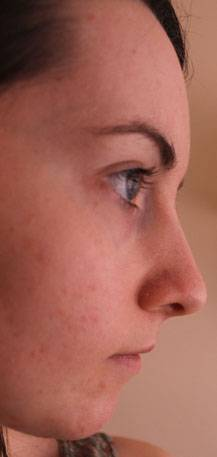 Nose Plastic Surgery In Florida » Rhinoplasty: Cost, Pics
