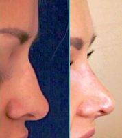 Affordable Rhinoplasty NC Before And After Pics