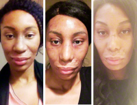African American Surgical Rhinoplasty New Mexico Patient