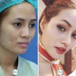 Asian Nose Augmentation Photos (1)