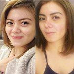 Asian Nose Augmentation Photos (2)