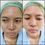 Asian Nose Augmentation Photos (3)