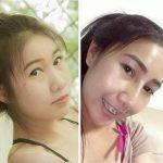 Asian Nose Augmentation Photos (4)