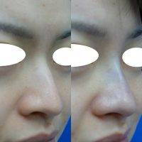 Asian Nose Lift In Indianapolis Images Preop And Postop