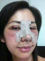 Asian Plastic Surgery Of Nose In Minnesota
