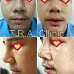 Augmentation Of The Nose Photos (1)