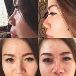 Augmentation Of The Nose Photos (2)