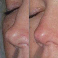 Augmentation Rhinoplasty Is Necessary For Both Aesthetic And Functional Indications